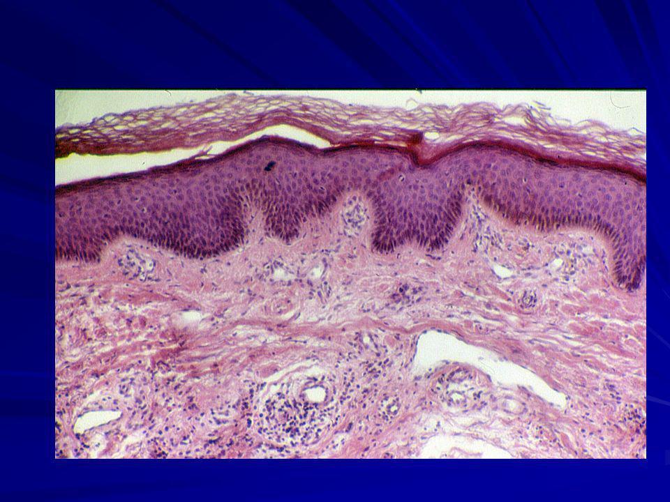 Melanociti Sono cellule dendritiche, disposte nello strato basale, che derivano dalla cresta neurale, aventi la funzione di produrre melanina, che è un filtro contro le radiazioni solari.