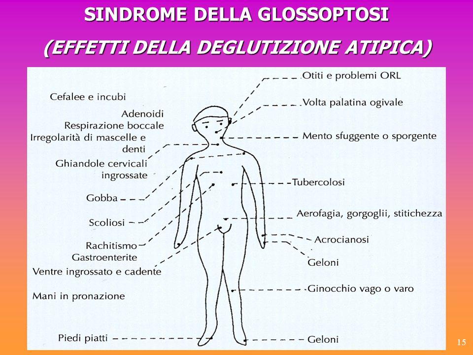 15 SINDROME DELLA GLOSSOPTOSI (EFFETTI DELLA DEGLUTIZIONE ATIPICA)
