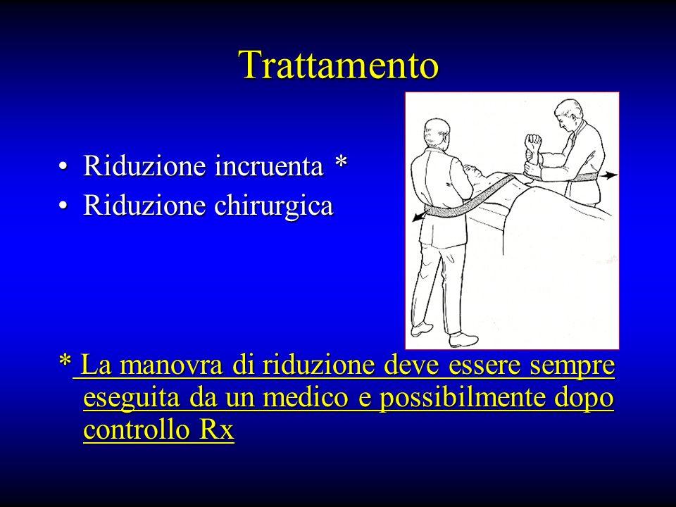 Trattamento Riduzione incruenta *Riduzione incruenta * Riduzione chirurgicaRiduzione chirurgica * La manovra di riduzione deve essere sempre eseguita da un medico e possibilmente dopo controllo Rx