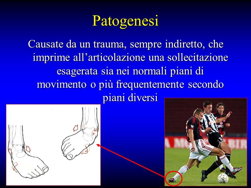 Patogenesi Causate da un trauma, sempre indiretto, che imprime allarticolazione una sollecitazione esagerata sia nei normali piani di movimento o più frequentemente secondo piani diversi