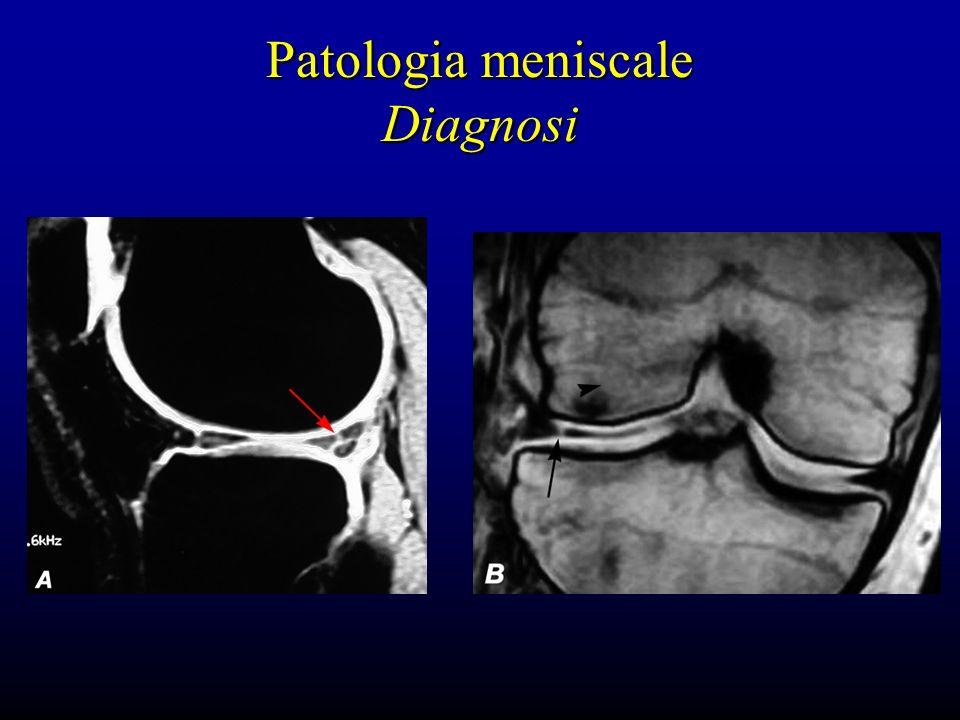 Patologia meniscale Diagnosi