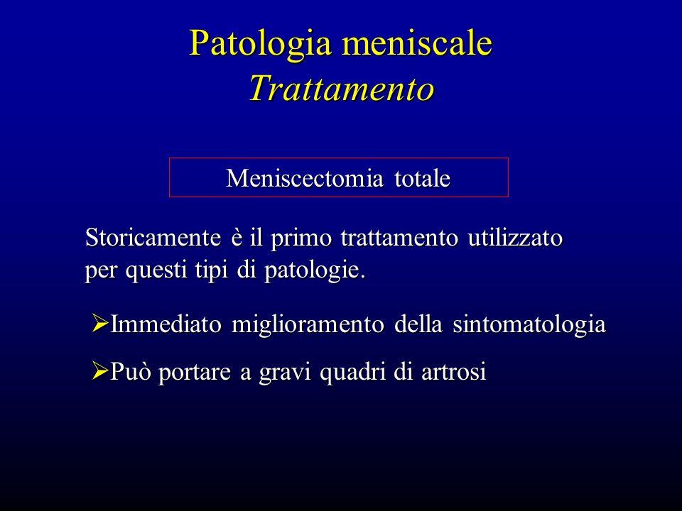 Patologia meniscale Trattamento Meniscectomia totale Storicamente è il primo trattamento utilizzato per questi tipi di patologie. Immediato migliorame