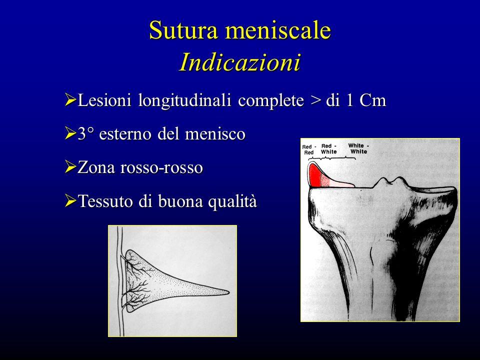 Sutura meniscale Indicazioni Lesioni longitudinali complete > di 1 Cm Lesioni longitudinali complete > di 1 Cm 3° esterno del menisco 3° esterno del m