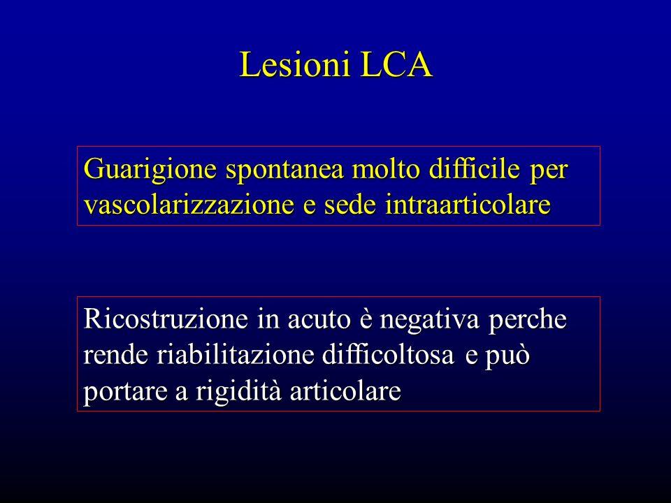Lesioni LCA Guarigione spontanea molto difficile per vascolarizzazione e sede intraarticolare Ricostruzione in acuto è negativa perche rende riabilita