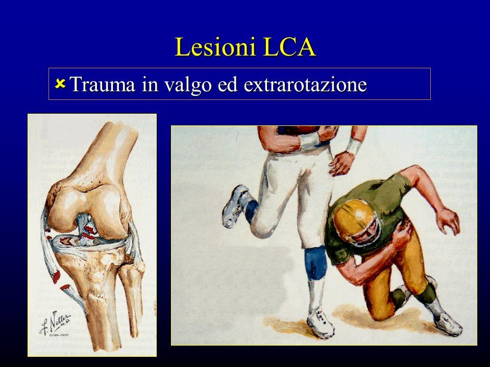 Lesioni LCA Trauma in valgo ed extrarotazione Trauma in valgo ed extrarotazione