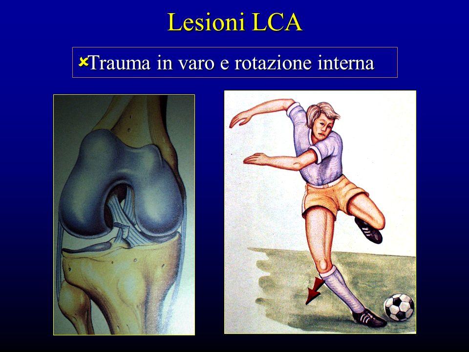 Lesioni LCA Trauma in varo e rotazione interna Trauma in varo e rotazione interna