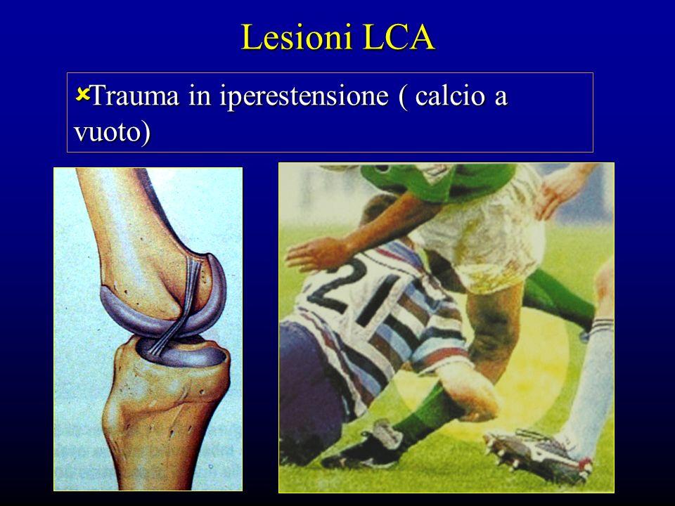 Lesioni LCA Trauma in iperestensione ( calcio a vuoto) Trauma in iperestensione ( calcio a vuoto)