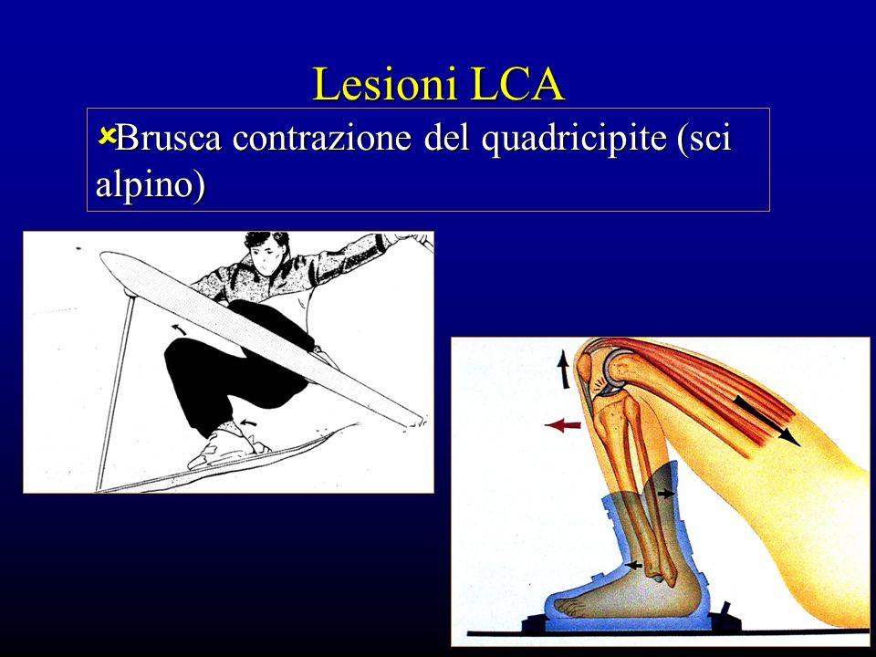 Lesioni LCA Brusca contrazione del quadricipite (sci alpino) Brusca contrazione del quadricipite (sci alpino)