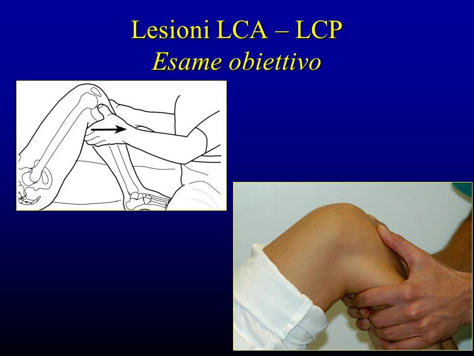 Lesioni LCA – LCP Esame obiettivo