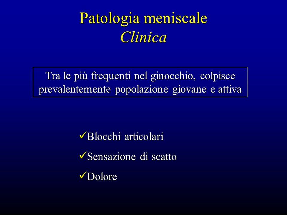 Patologia meniscale Clinica Tra le più frequenti nel ginocchio, colpisce prevalentemente popolazione giovane e attiva Blocchi articolari Blocchi artic