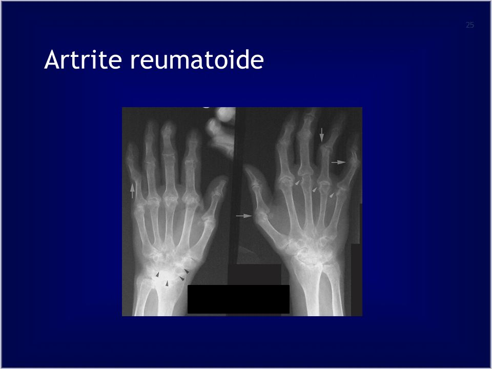 25 Artrite reumatoide