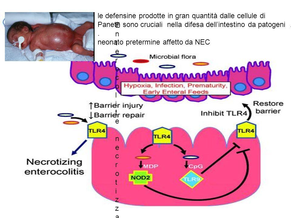 Enterocolite necrotizzanteEnterocolite necrotizzante le defensine prodotte in gran quantità dalle cellule di Paneth sono cruciali nella difesa dellint