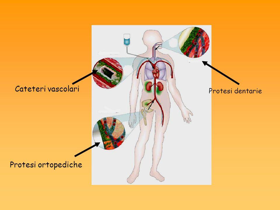 Protesi ortopediche Cateteri vascolari Protesi dentarie
