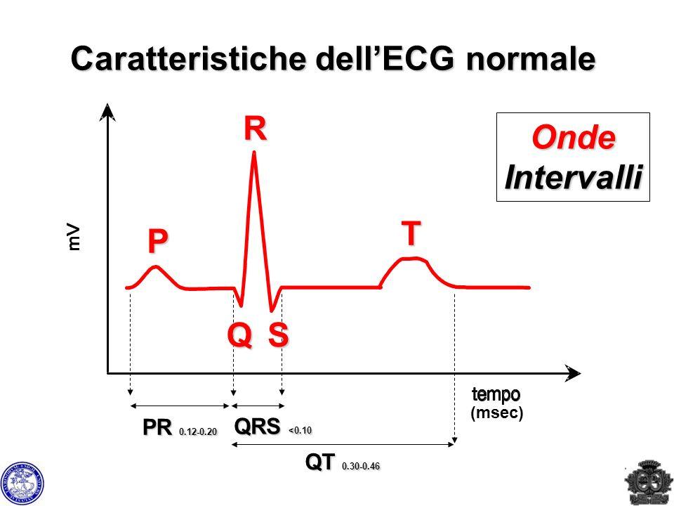 Caratteristiche dellECG normale P T R QRS <0.10 PR 0.12-0.20 QT 0.30-0.46 QS OndeIntervalli (msec)