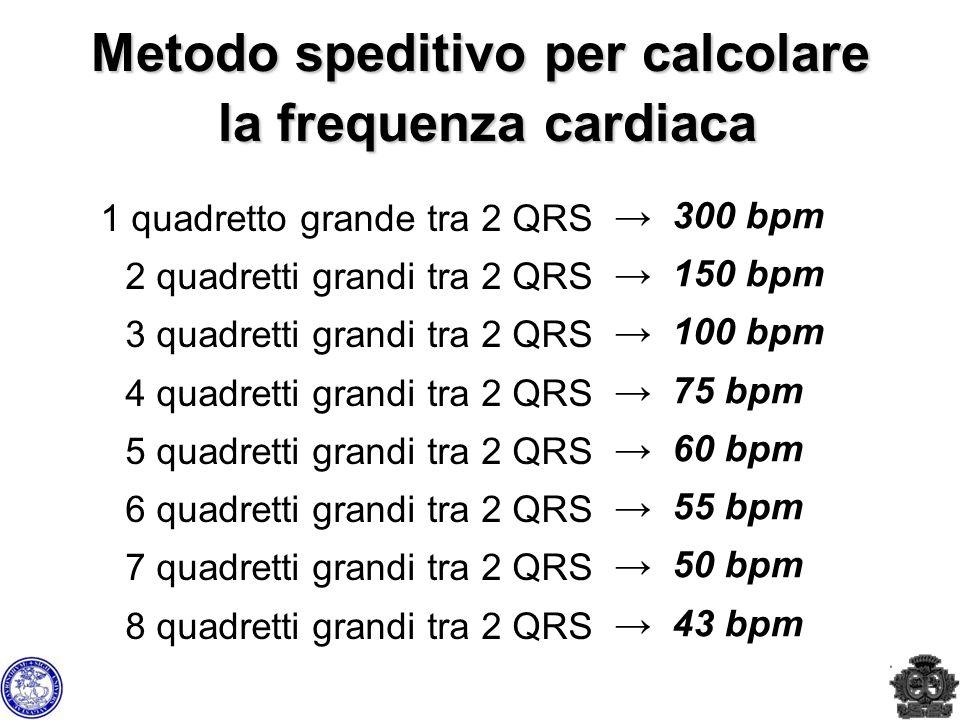 Metodo speditivo per calcolare la frequenza cardiaca 1 quadretto grande tra 2 QRS 2 quadretti grandi tra 2 QRS 3 quadretti grandi tra 2 QRS 4 quadrett