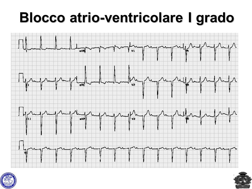 Blocco atrio-ventricolare I grado
