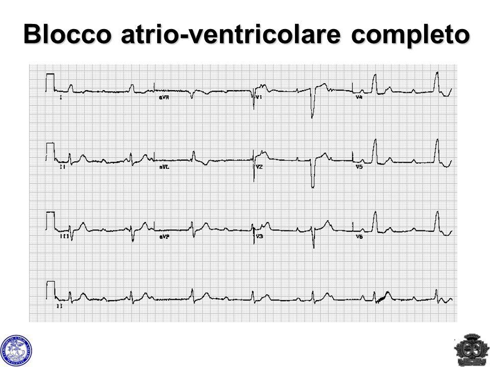Blocco atrio-ventricolare completo