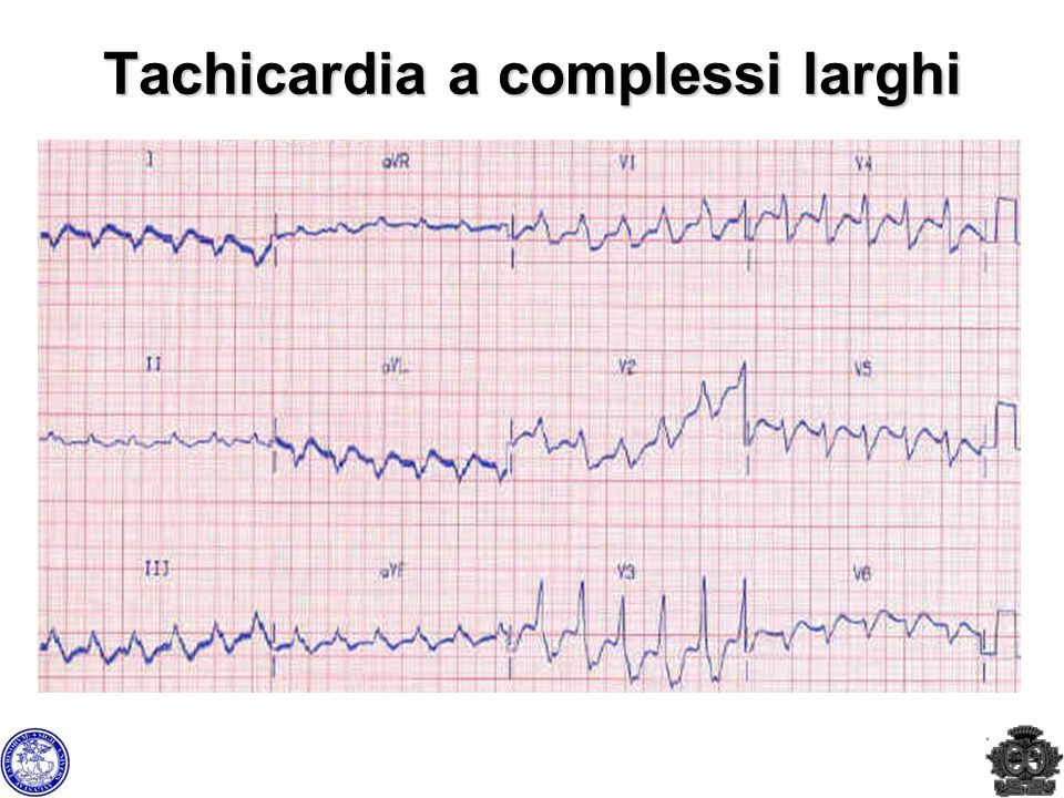 Tachicardia a complessi larghi