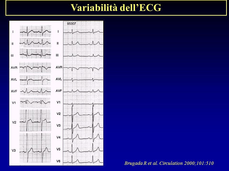 Brugada R et al. Circulation 2000;101:510 Variabilità dellECG