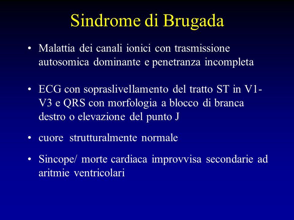 Sindrome di Brugada Mutazioni finora identificate (solo nel 20% dei pazienti) sono a carico del gene SCN5A che codifica per il canale del sodio Descritte due morfologie del segmento ST nelle derivazioni V1-V3: