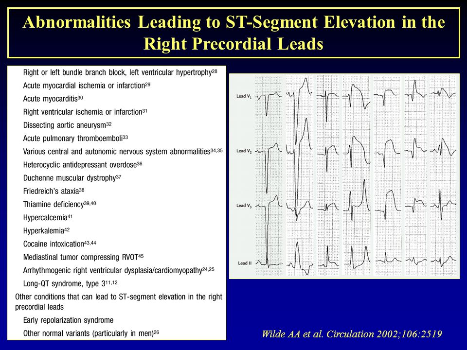 Wilde AA et al. Circulation 2002;106:2519 Abnormalities Leading to ST-Segment Elevation in the Right Precordial Leads