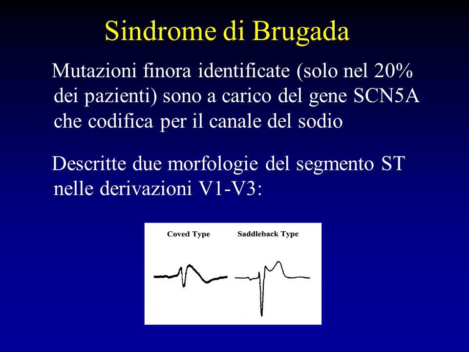 Sindrome di Brugada Mutazioni finora identificate (solo nel 20% dei pazienti) sono a carico del gene SCN5A che codifica per il canale del sodio Descri