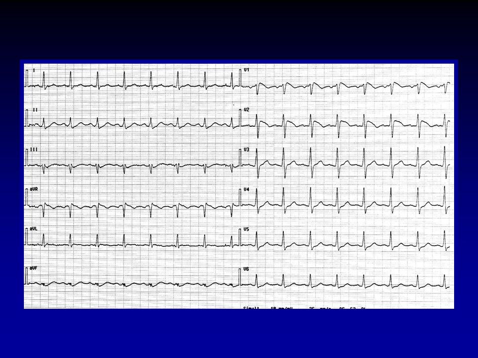Conclusioni wIncidenza di eventi: 3.5% eventi/anno w In pazienti con SEF + devono essere impiantati 6 ICD per prevenire 1 evento ad un follow-up di 2 anni.
