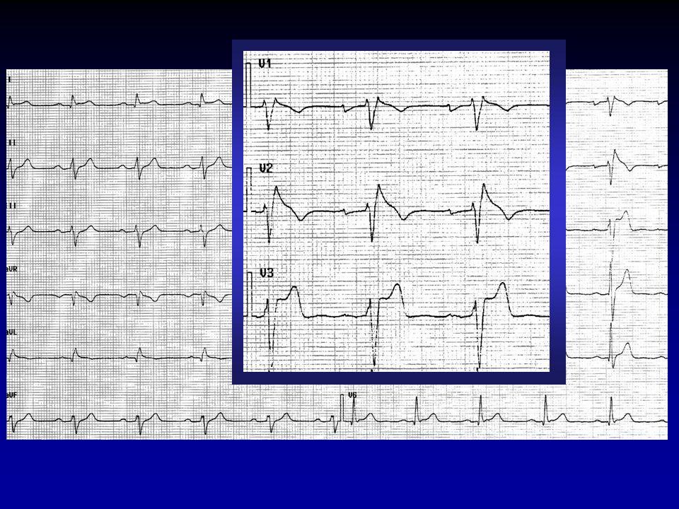 STIMOLAZIONE ELETTRICA PROGRAMMATA - Registrazione parametri basali; - Stimolazione programmata da due zone del ventricolo dx : apice (RVA) e tratto di efflusso (RVOT); - due cicli di stimolazione, 600 e 400 ms; - singolo e doppio extrastimolo; -Stimolo più precoce con intervallo di accoppiamento uguale al periodo refrattario ventricolare