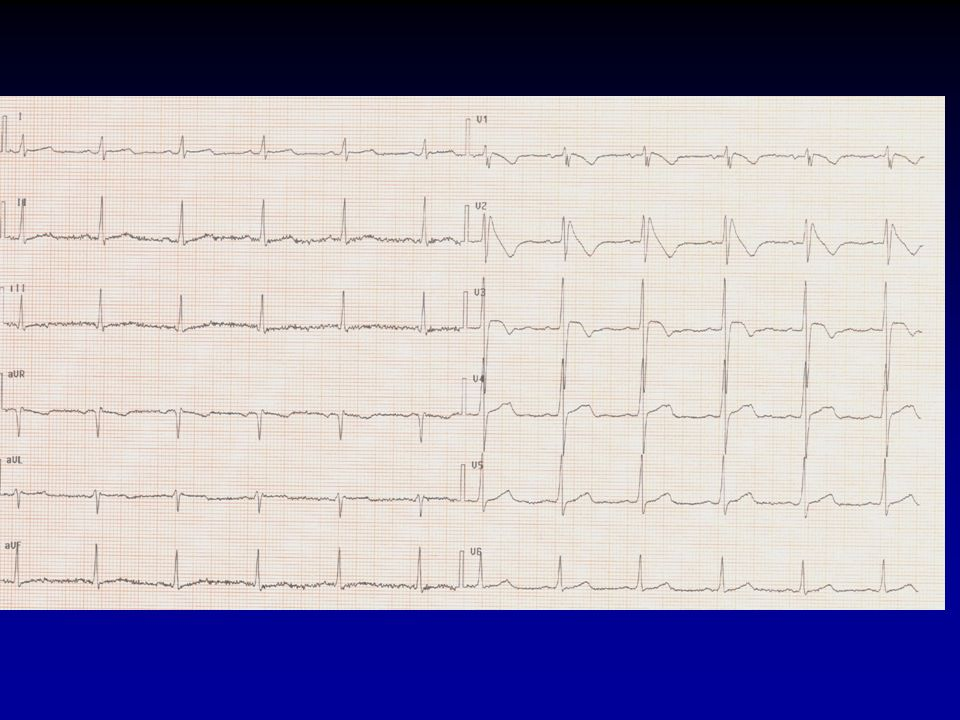EP-Guided Quinidine Therapy ADVANTAGES Prevents arrhythmic events (NSVT/VF) Low cost Bridge to ICD (young patients +++) Noninvasive mode of treatment