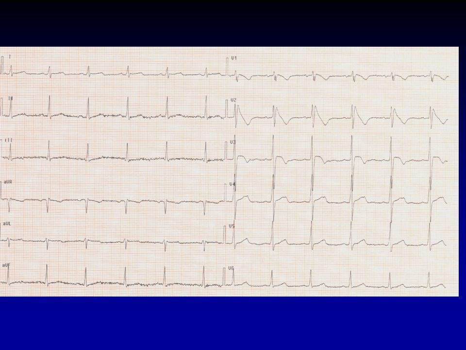Miyazaki T et al. J Am Coll Cardiol 1996;27:1061 Autonomic Modulation