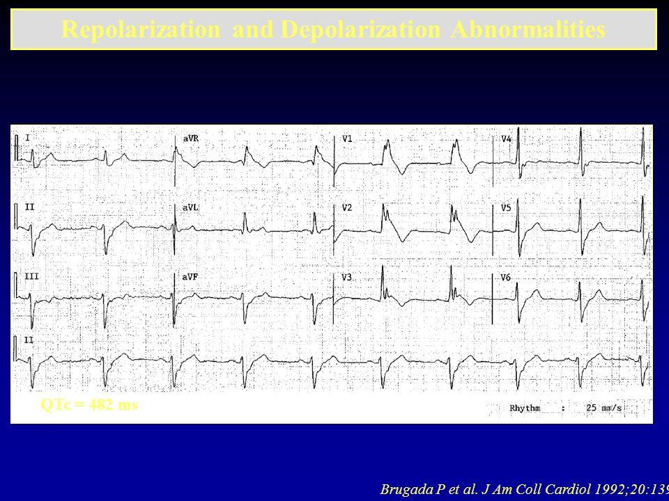 Brugada P et al. J Am Coll Cardiol 1992;20:1391 Repolarization and Depolarization Abnormalities QTc = 482 ms