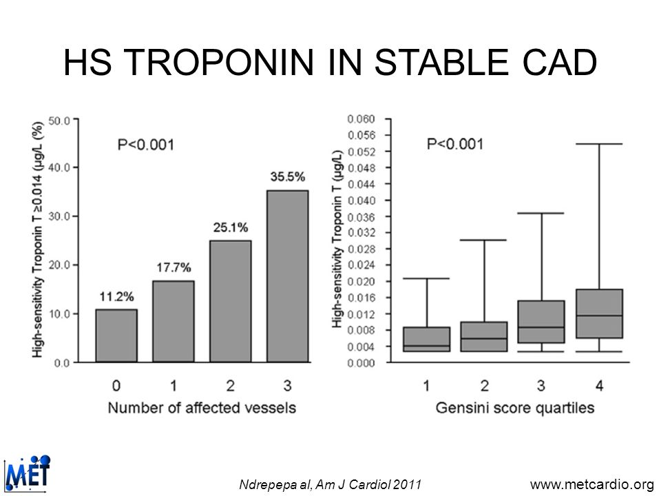 www.metcardio.org HS TROPONIN IN STABLE CAD Ndrepepa al, Am J Cardiol 2011