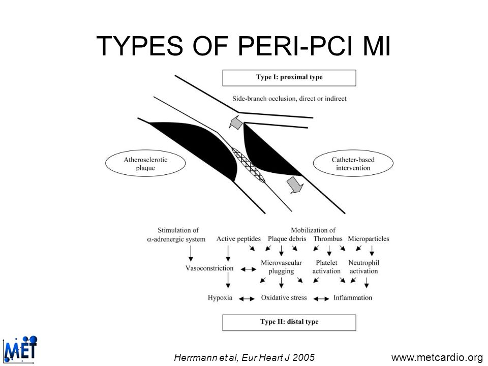 www.metcardio.org PERI-PCI MI AND LESION TYPE van Gaal et al, Int J Cardiol 2009