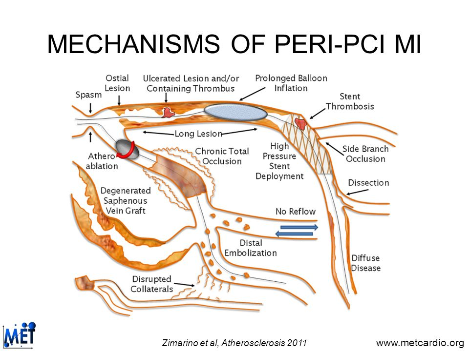 www.metcardio.org MECHANISMS OF PERI-PCI MI Side-branch closure Thrombo-embolism Dissection Microvascular impairment Prolonged occlusion Spasm Zimarino et al, Atherosclerosis 2011