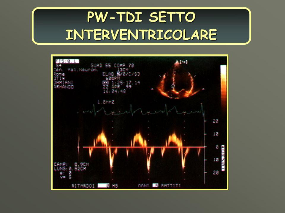 PW-TDI SETTO INTERVENTRICOLARE