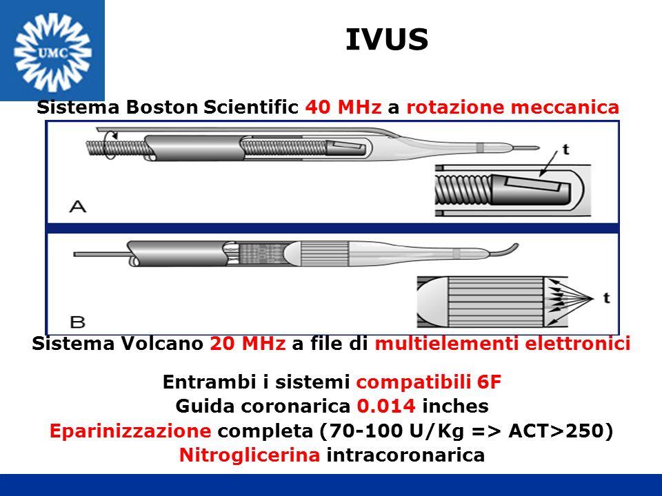IVUS Sistema Boston Scientific 40 MHz a rotazione meccanica Sistema Volcano 20 MHz a file di multielementi elettronici Entrambi i sistemi compatibili