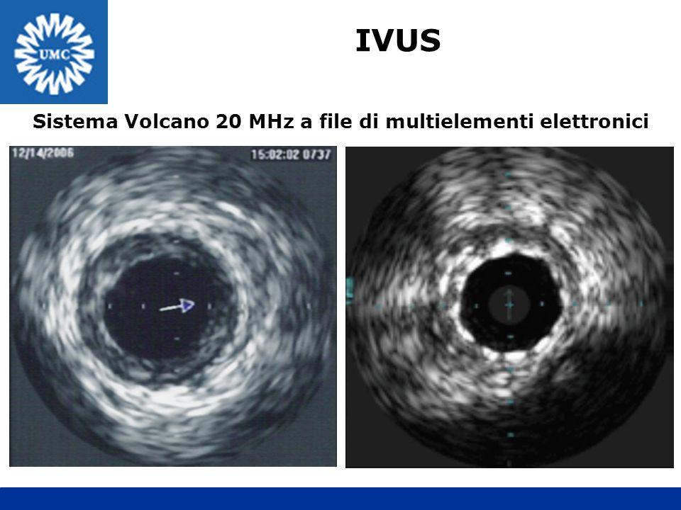 IVUS Sistema Volcano 20 MHz a file di multielementi elettronici