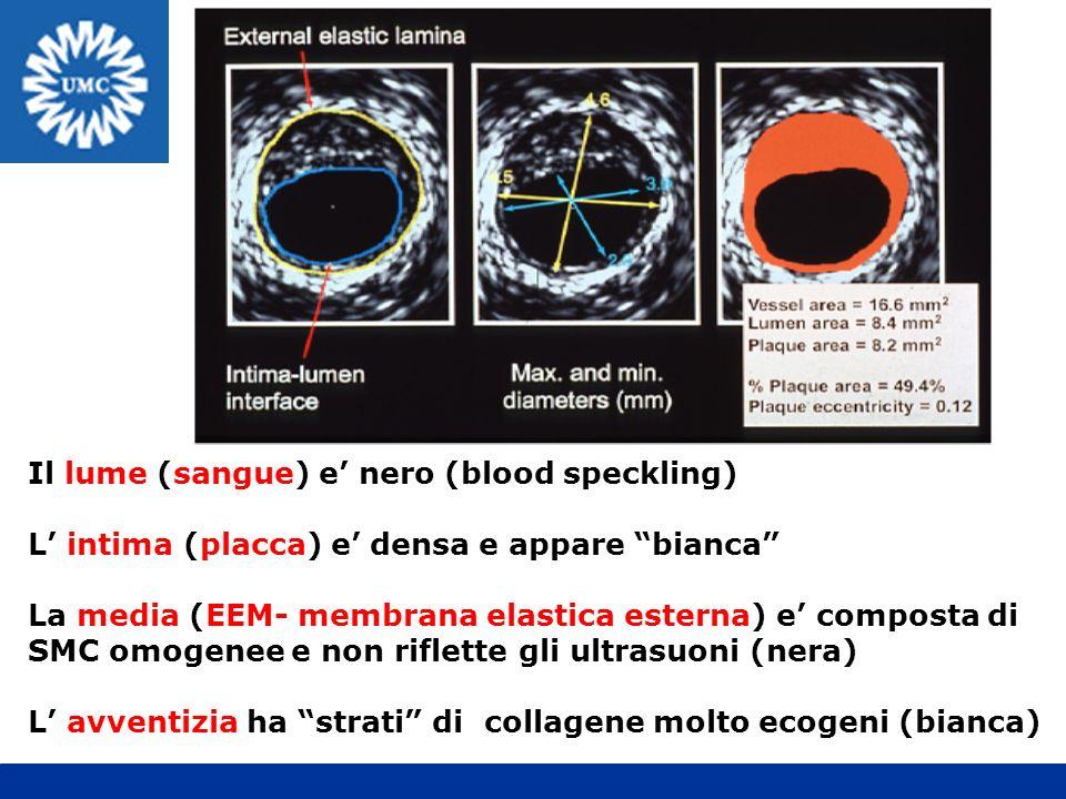 Il lume (sangue) e nero (blood speckling) L intima (placca) e densa e appare bianca La media (EEM- membrana elastica esterna) e composta di SMC omogen