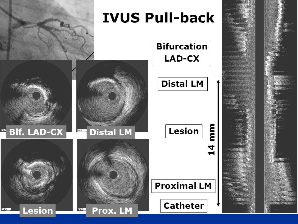 IVUS Pull-back Proximal LM Lesion Catheter Distal LM Bifurcation LAD-CX 14 mm Bif. LAD-CX Prox. LM Distal LM Lesion