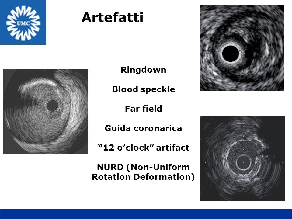 Artefatti Ringdown Blood speckle Far field Guida coronarica 12 oclock artifact NURD (Non-Uniform Rotation Deformation)