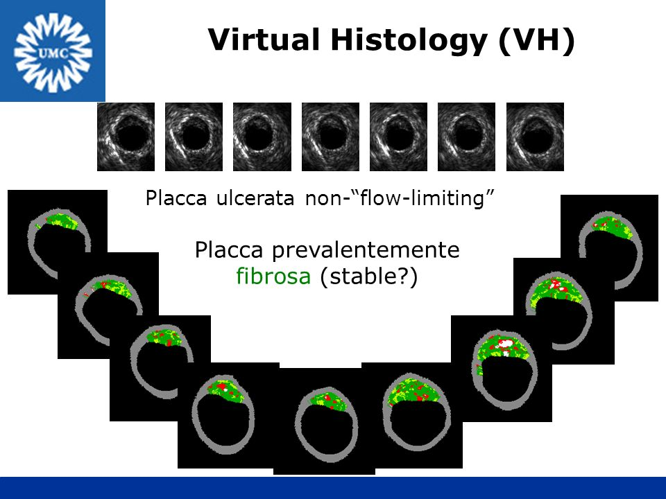 Placca ulcerata non-flow-limiting Placca prevalentemente fibrosa (stable?) Virtual Histology (VH)