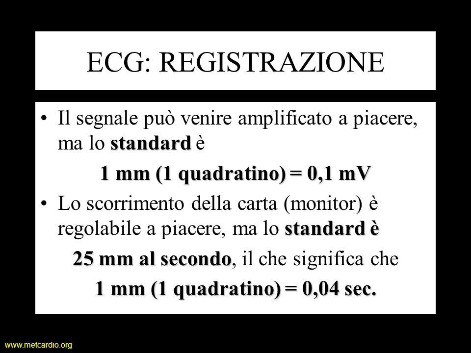 www.metcardio.org ECG: REGISTRAZIONE standardIl segnale può venire amplificato a piacere, ma lo standard è 1 mm (1 quadratino) = 0,1 mV standard èLo s