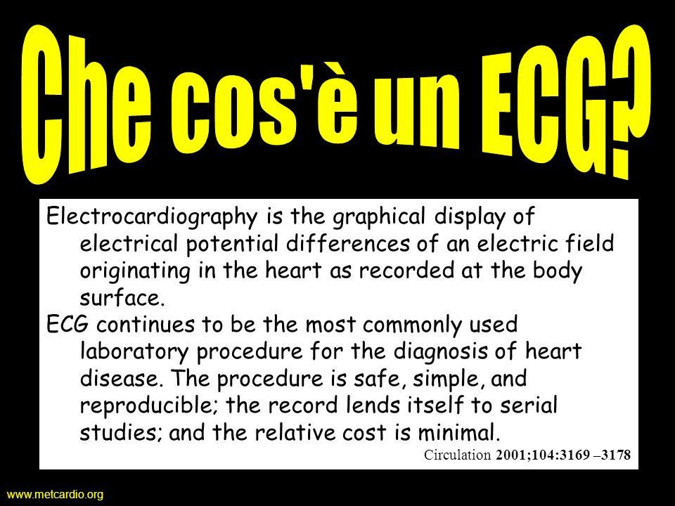 www.metcardio.org Registrazione Galvanometro: strumento che registra la differenza di potenziale tra 2 elettrodi (positivo e negativo) Derivazione: linsieme di 2 elettrodi applicati in un campo elettrico Asse della derivazione: linea immaginaria che unisce i due elettrodi Derivazione bipolare: entrambi gli elettrodi sono situati nel campo Derivazione unipolare: lelettrodo negativo (chiamato indifferente) è a potenziale zero; lelettrodo positivo è chiamato esplorante