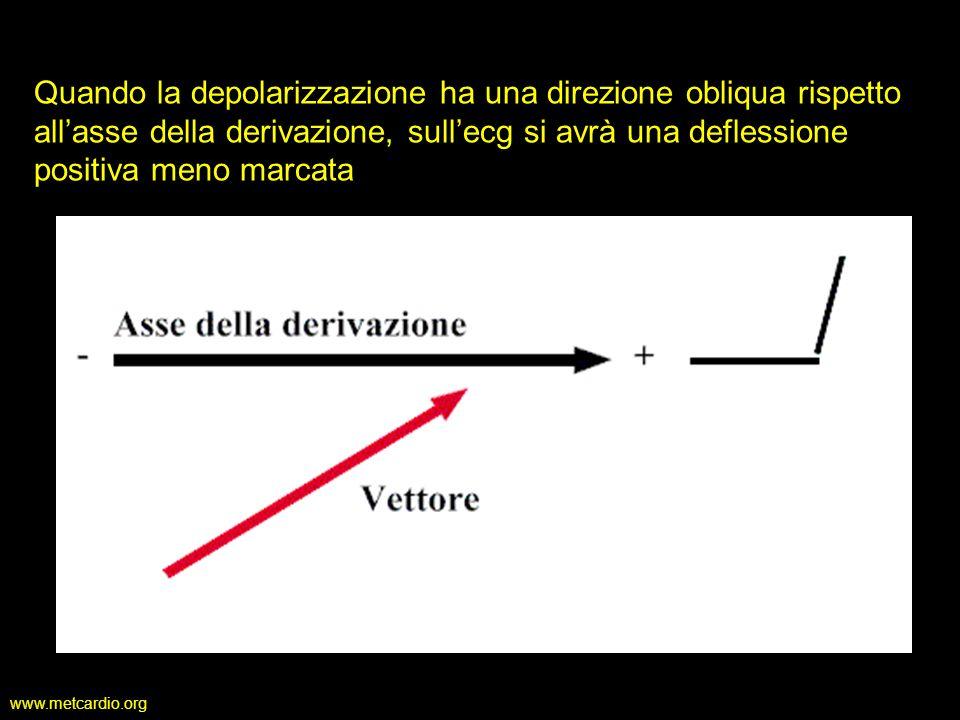 www.metcardio.org Quando la depolarizzazione ha una direzione obliqua rispetto allasse della derivazione, sullecg si avrà una deflessione positiva men