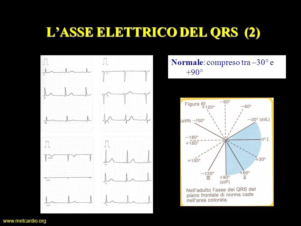 www.metcardio.org Normale: compreso tra –30° e +90° LASSE ELETTRICO DEL QRS (2)