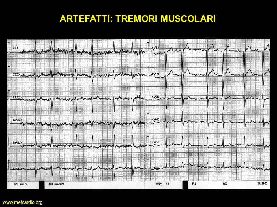 www.metcardio.org ARTEFATTI: TREMORI MUSCOLARI