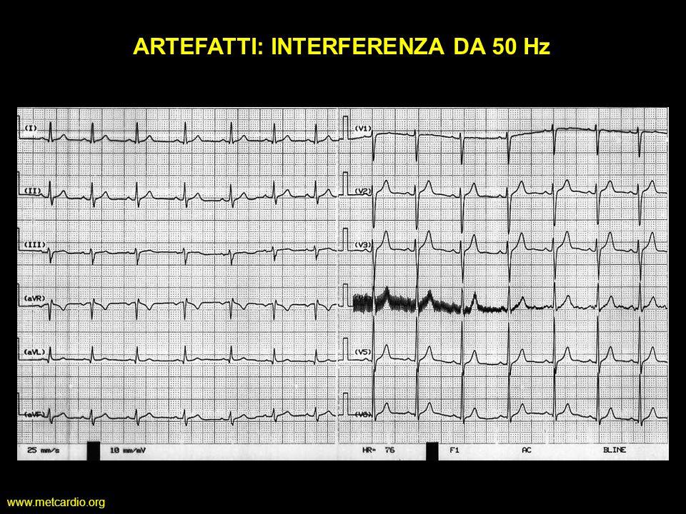 www.metcardio.org ARTEFATTI: INTERFERENZA DA 50 Hz