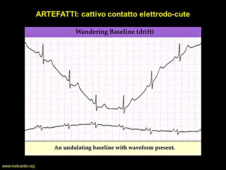 www.metcardio.org ARTEFATTI: cattivo contatto elettrodo-cute