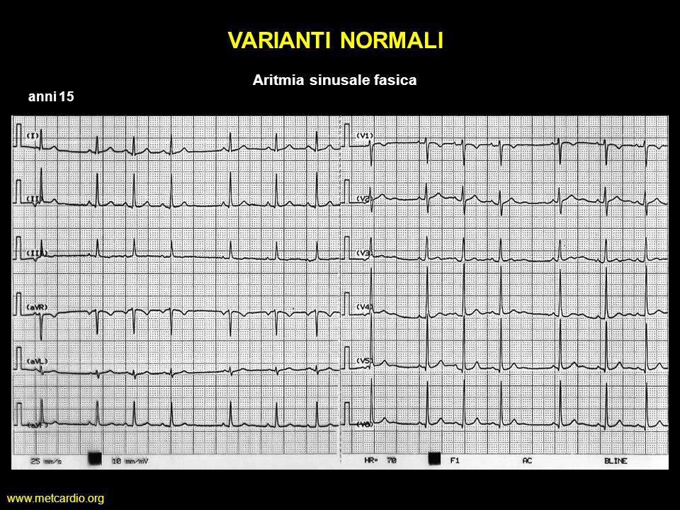 www.metcardio.org VARIANTI NORMALI anni 15 Aritmia sinusale fasica