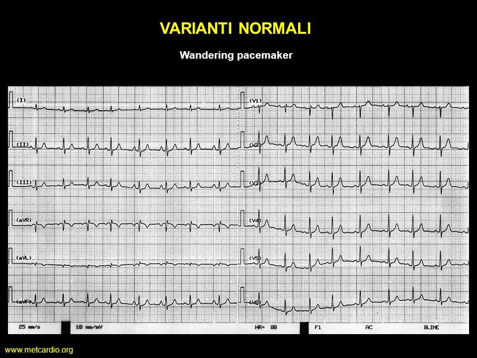 www.metcardio.org VARIANTI NORMALI Wandering pacemaker